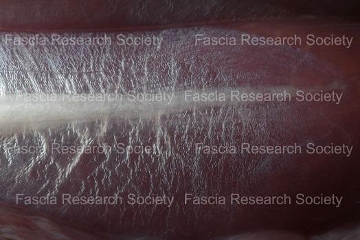 Image of Fascia